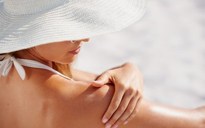 Soothing a Sunburn Naturally